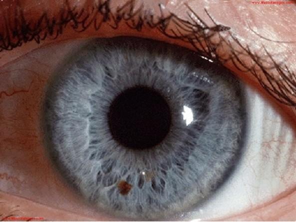 adbb7-retina